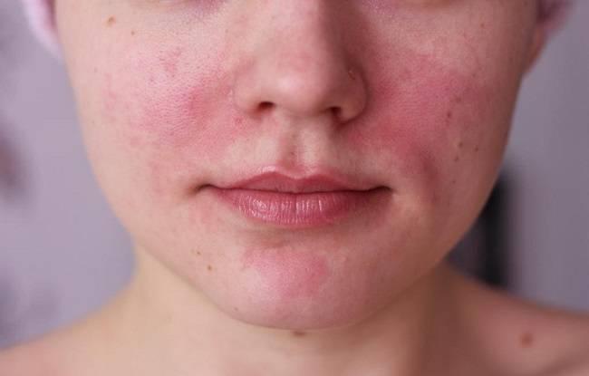 Почервоніння і лущення шкіри на обличчі