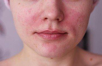 почервоніння шкіри