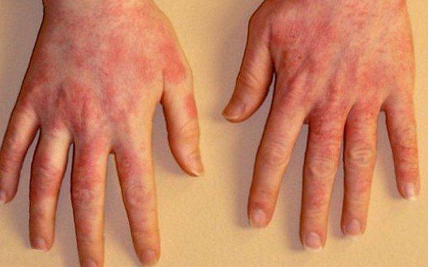 Почервоніння між пальцями рук: фото, причини і лікування свербіння і лущення шкіри