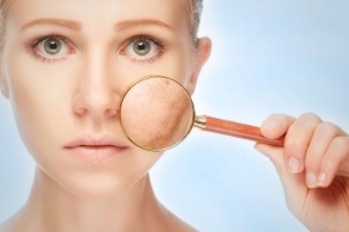 Пориста шкіра на обличчі, що робити. Основні причини пористої шкіри