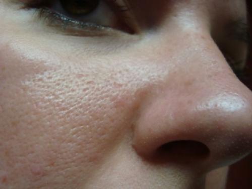 Пориста шкіра на щоках, що робити. Як позбутися від пористої шкіри на обличчі?