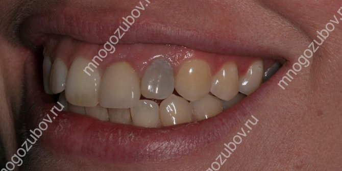 Після лікування потемнів зуб