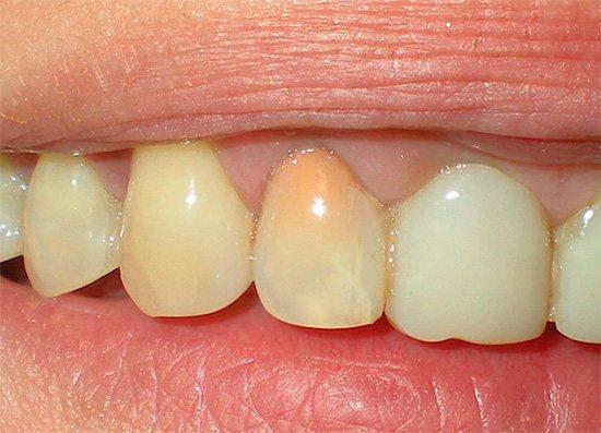 Після лікування пульпіту резорцин-формаліновим методом зуб набуває рожеву або навіть червонуватого забарвлення.