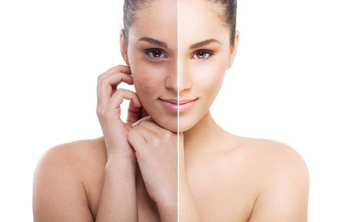 Після декількох застосувань підтягувала маски, ви помітите, що ваша шкіра стане більш пружною, еластичною, а колір обличчя стане світліше і свіже