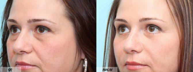 після операції з видалення мішків під очима