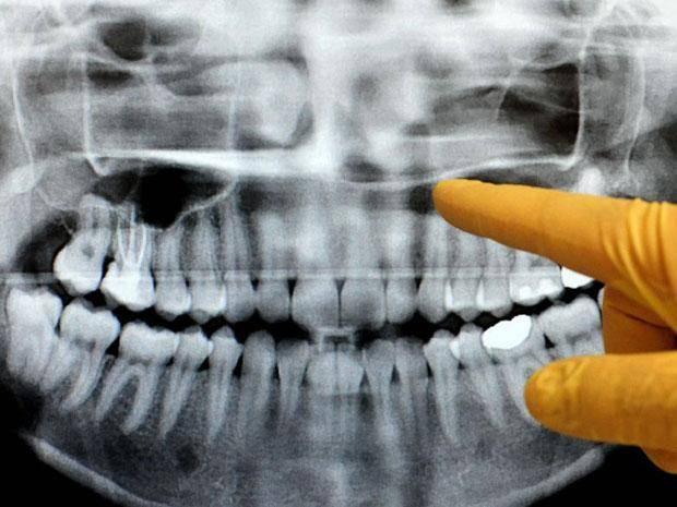 після видалення зуба на яснах біла пляма