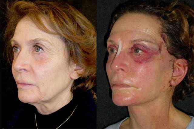 наслідки підтяжки обличчя