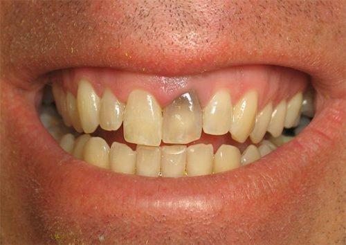 Потемніння зуба після лікування