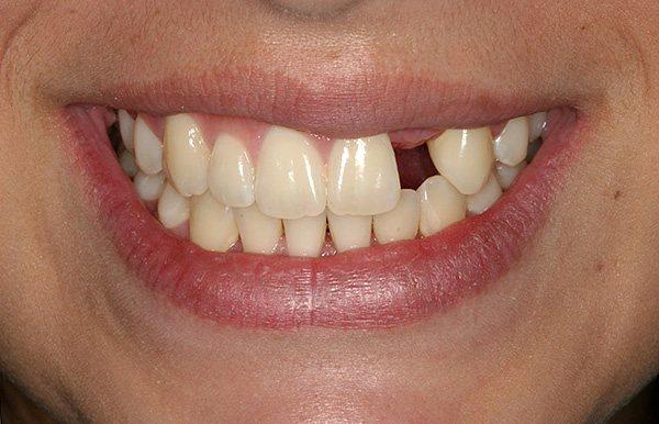 Втрата навіть одного зуба без своєчасно проведеного протезування може дуже негативно позначитися на стані всієї зубощелепної системи.