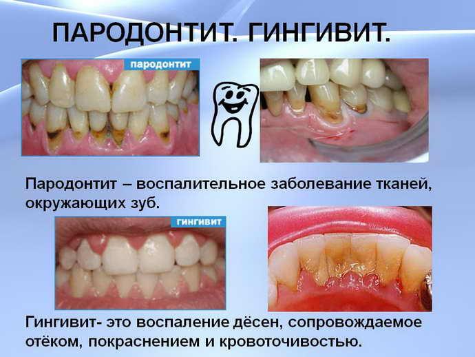 поява виражених дірок між зубами при пародонтиті
