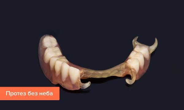 Переваги зубних протезів без неба