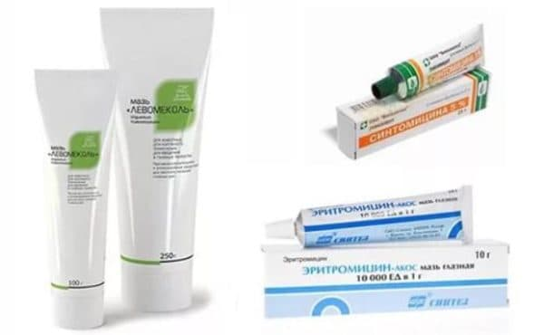Препарати для лікування тріщин в куточках рота
