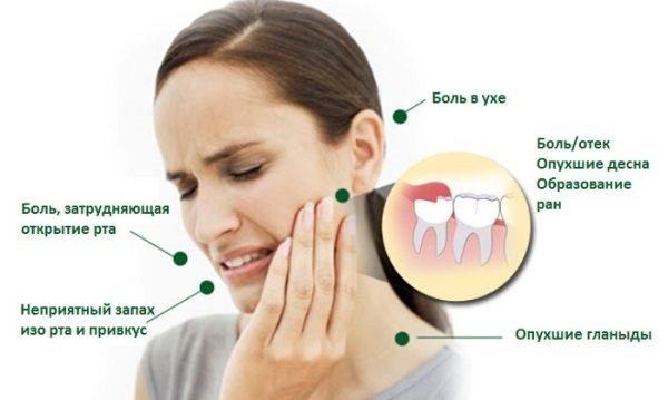 Препарати від зубного болю швидкі і ефективні без рецептів, для дітей, дорослих, при вагітності