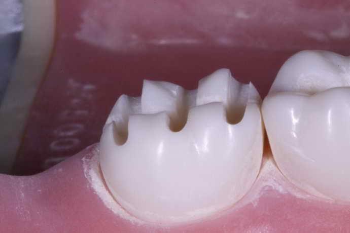 препарування зуба перед коронкою