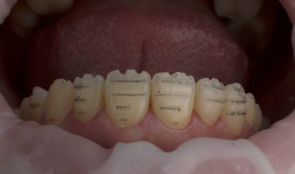препарування зуба під вінір
