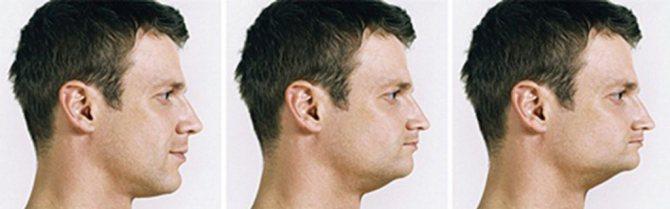 При довгій відсутності зубів змінюється форма обличчя