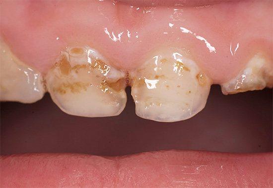 При поганій гігієні порожнини рота зубна емаль може руйнуватися в ряді випадків дуже швидко, особливо у молочних зубів.
