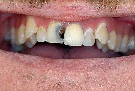 При сильній зубного болю краще скористатися іншим, більш потужним препаратом.