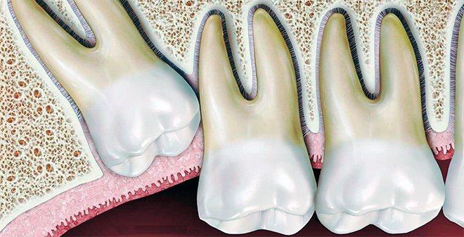 при такому розташуванні зуб заподіює біль пацієнтові