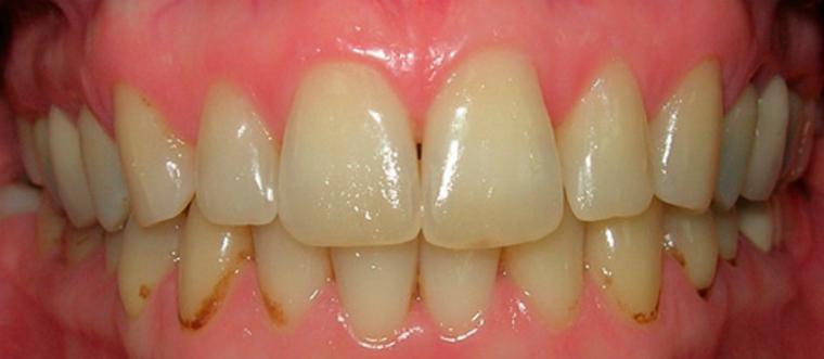 Причини утворення зубного нальоту