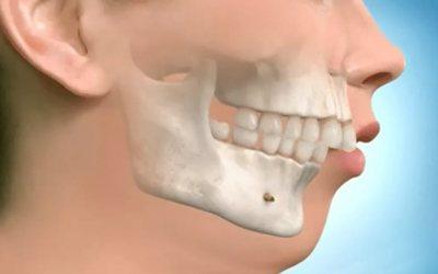 Причини виникнення дистального прикусу - Стоматологія Лінія Посмішки