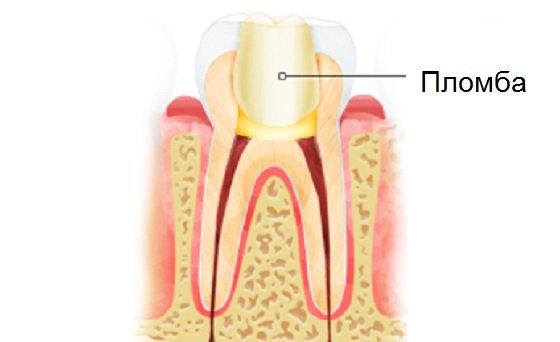 Причини випадання зубної пломби