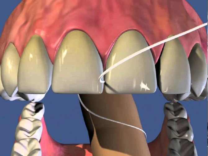 Принцип дії зубної нитки