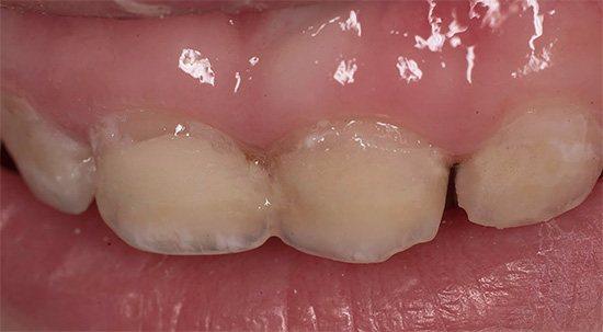 Вживати заходів щодо захисту від карієсу потрібно з появи першого молочного зуба, не чекаючи, коли почнеться його руйнування ...