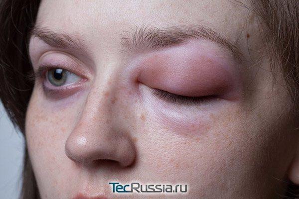 припухлість особи як наслідок алергії