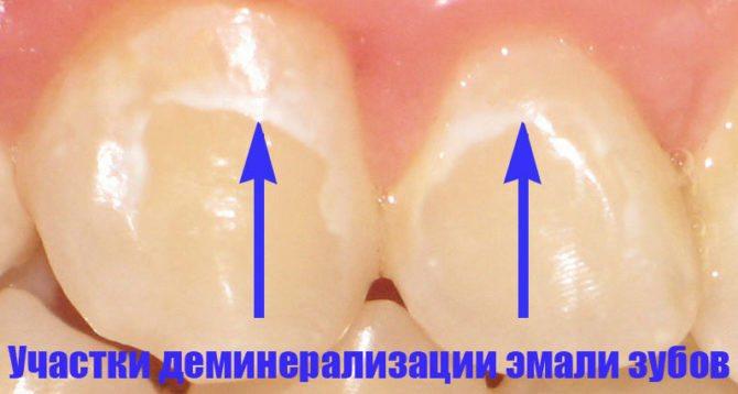 Ознака демінералізації емалі зуба
