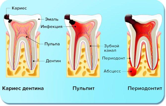 Ознаки карієсу, пульпіту і періодонтиту