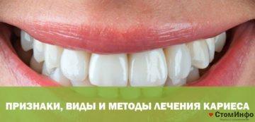 Ознаки, види і методи лікування карієсу на передніх зубах