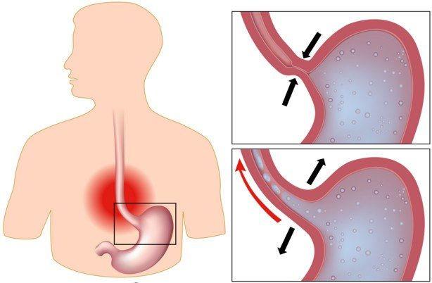 Проблеми зі шлунком