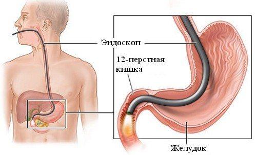 процедура ендоскопії