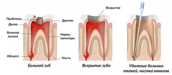 Процес лікування зубів