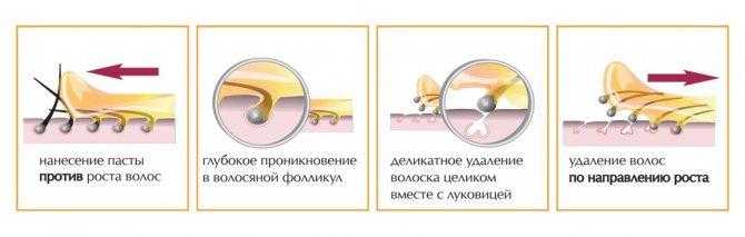 процес шугаринга
