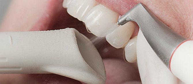 Професійне чищення зубів: Air Flow, ультразвуком, лазером