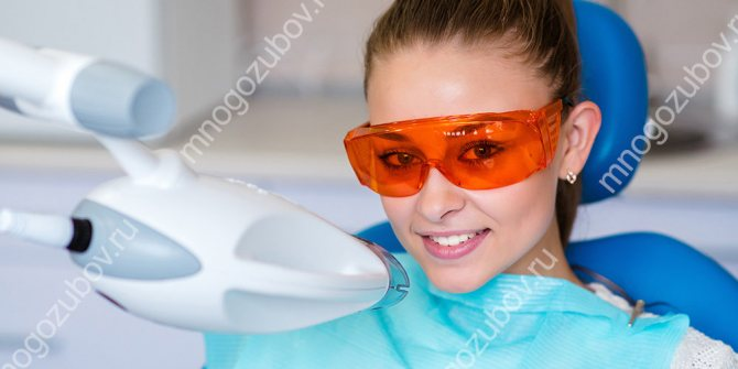 Професійне відбілювання зубів