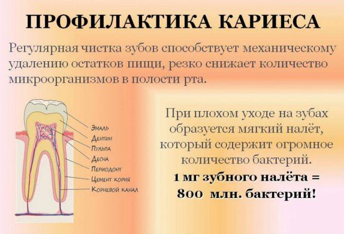 профілактика карієсу