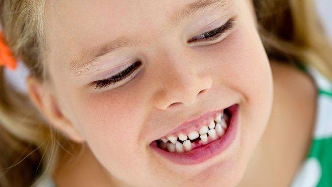 Відбувається збільшення проміжком вежду зубами
