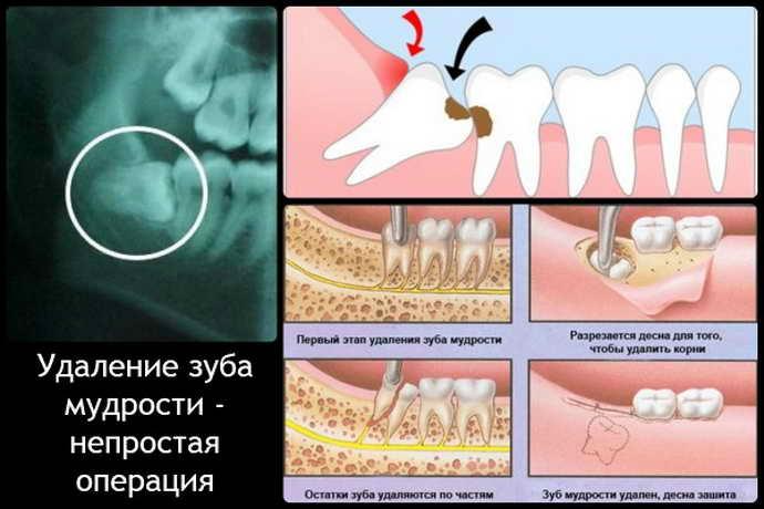 Просте видалення зуба мудрості