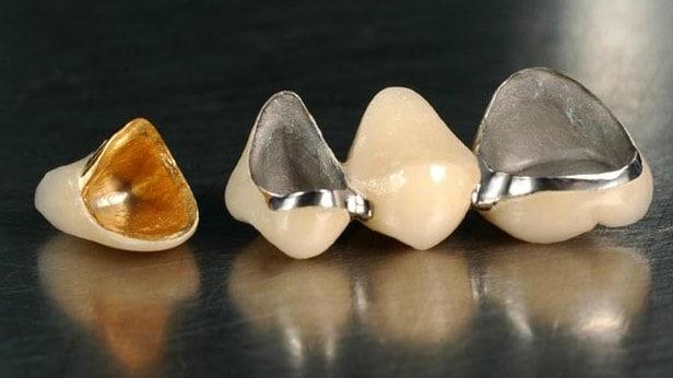 протезування металокерамікою