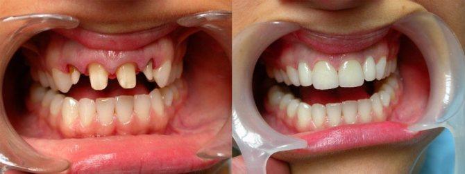протезування передніх зубів