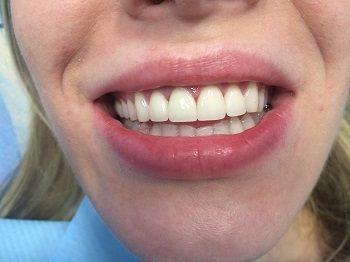 протези на передні зуби