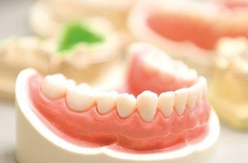 протези в зуби