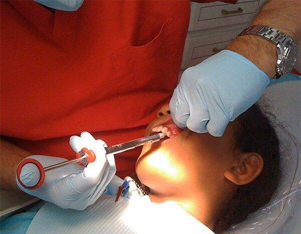 Проведення анестезії при лікуванні глибокого карієсу