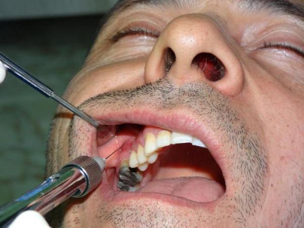 Проведення анестезії Туберальна методом
