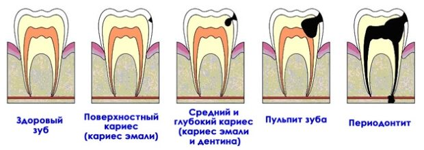Пульпіт і карієс зуба