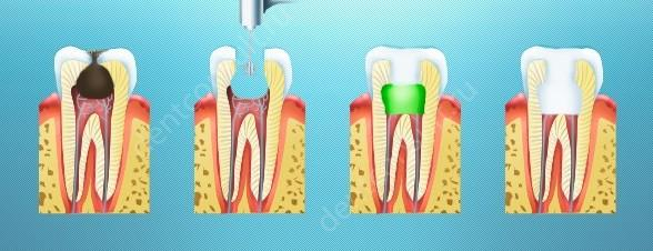 Пульпіт молочних зубів, методи лікування