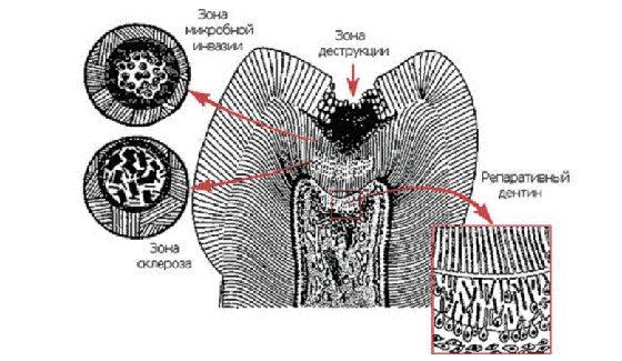 Шлях інфекції від поверхні зуба до пульпи